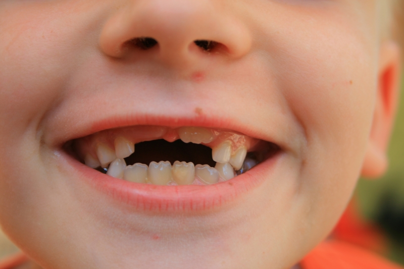выпадение зубов